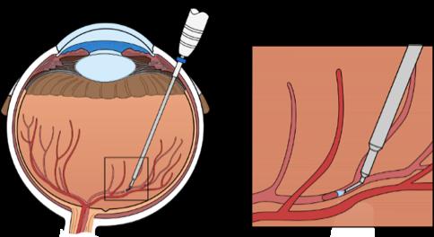 Injectie antistollingsmiddel